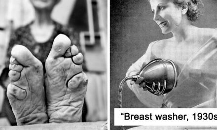 30 Unimaginable Things Women Did In The Past Just For The Sake Of 'Beauty'